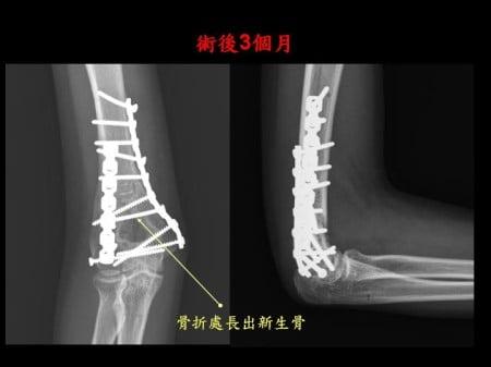elbow-fx (3)