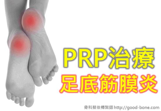 prp-plantar-fasciitis-01