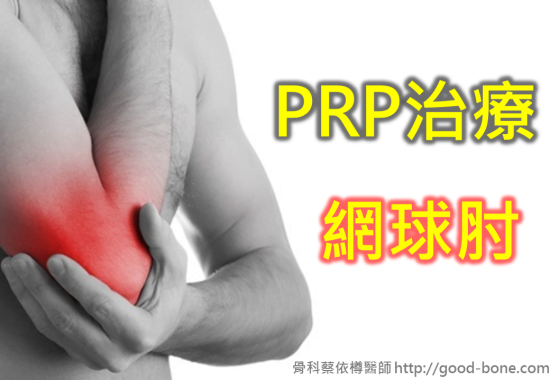 prp-tennis-elbow-01