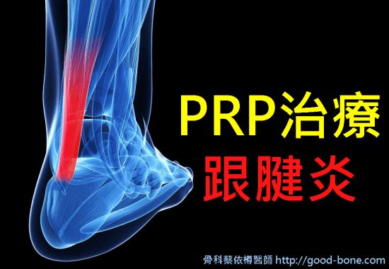 Homepage-prp-achilles-tendinitis-01