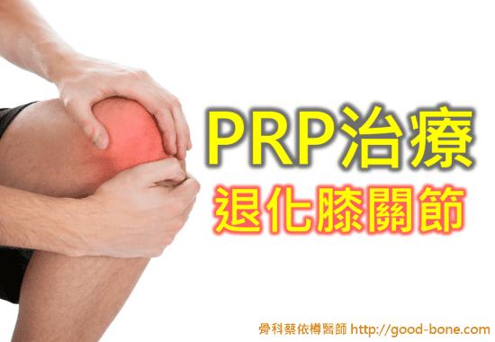prp-oaknee-01