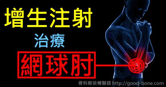 增生注射治療網球肘|台中骨科蔡依樽醫師https://good-bone.com