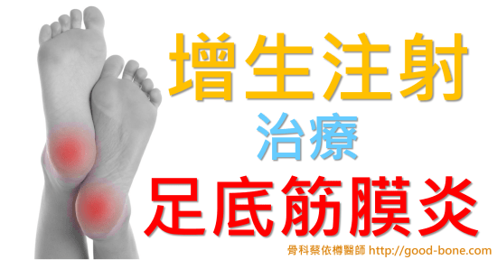增生注射治療足底筋膜炎|台中骨科蔡依樽醫師https://good-bone.com