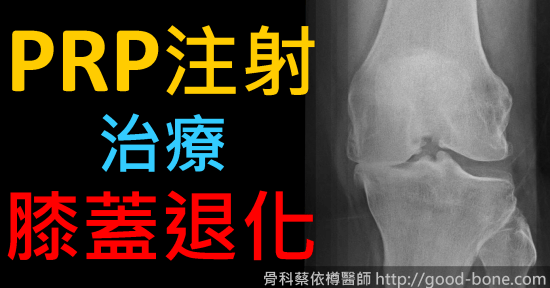 HomePage-FB-case010-prp-oa-knee