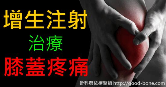 增生注射治療膝蓋疼痛|台中骨科蔡依樽醫師https://good-bone.com