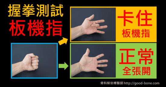 握拳後手指卡住,可能是手指卡卡的板機指。|專業骨科推薦|台中骨科蔡依樽醫師https://good-bone.com