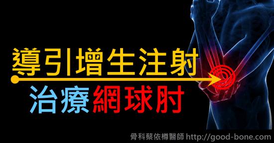 導引增生注射治療網球肘|專業骨科推薦|台中骨科蔡依樽醫師https://good-bone.com