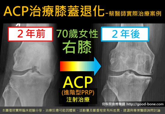 超音波導引PRP 注射治療膝蓋退化|專業骨科推薦|台中骨科蔡依樽醫師https://good-bone.com