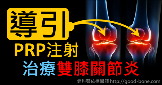 超音波導引PRP 注射治療雙膝蓋疼痛關節炎|疼痛注射專家、超音波導引PRP增生治療、專業骨科推薦|台中骨科蔡依樽醫師https://good-bone.com