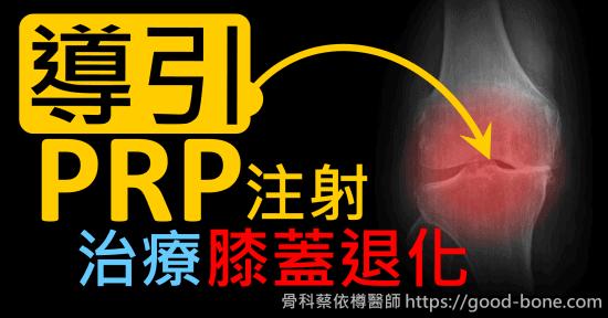 超音波導引PRP 注射治療雙膝蓋退化疼痛關節炎|疼痛注射專家、超音波導引PRP增生治療、專業骨科推薦|台中骨科蔡依樽醫師https://good-bone.com