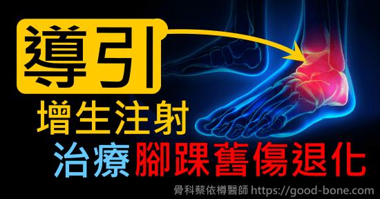 超音波導引葡萄糖增生注射治療腳足踝舊傷退化疼痛關節炎|疼痛注射專家、超音波導引PRP增生治療、專業骨科推薦|台中骨科蔡依樽醫師https://good-bone.com