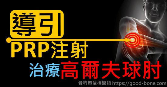 超音波導引PRP注射治療復發型高爾夫球肘|疼痛注射專家、超音波導引PRP增生治療、專業骨科推薦|台中骨科蔡依樽醫師https://good-bone.com