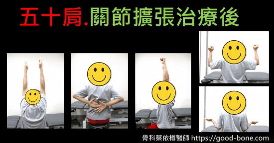 超音波導引五十肩關節擴張注射治療。五十肩肩膀疼痛沾黏|專業骨科推薦|台中骨科蔡依樽醫師https://good-bone.com