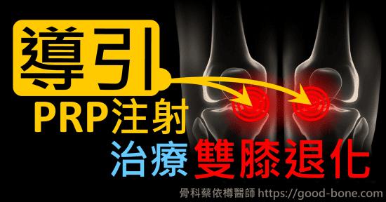 超音波導引PRP 注射治療膝蓋退化疼痛關節炎|疼痛注射專家、超音波導引PRP增生治療、專業骨科推薦|台中骨科蔡依樽醫師https://good-bone.com